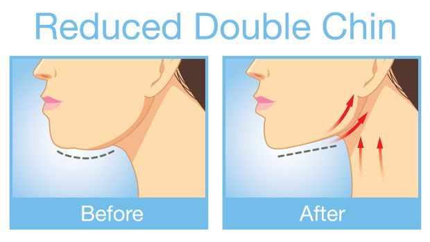 how to get rid of a cleft chin at home