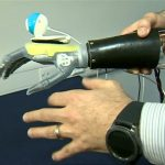 Bionic hand 'sees and grabs' objects automatically
